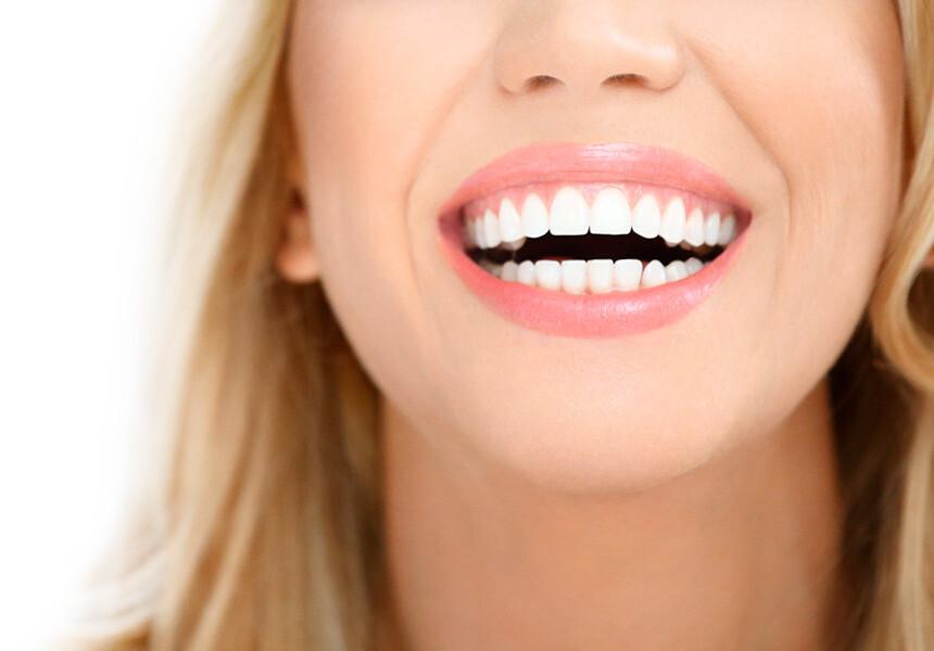 Prirodno beljenje zubi